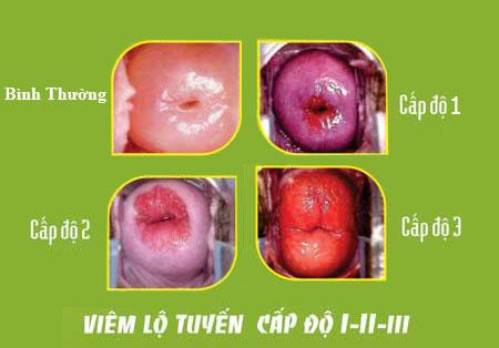 Một số điều cần biết về bệnh Viêm lộ tuyến cổ tử cung